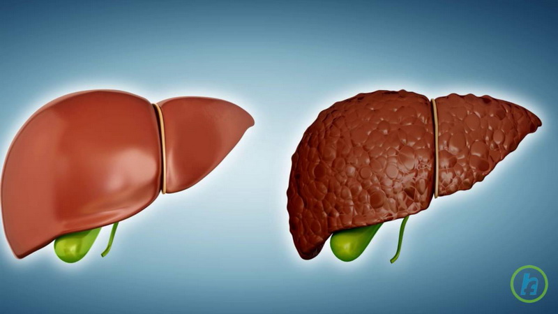 Tratamente naturiste in ciroza hepatica