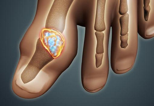 Tratamente pentru guta, care reduc durerile articulare