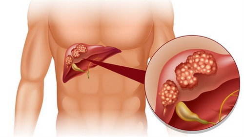 Tratamente naturiste pentru cancerul hepatic