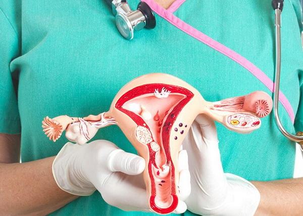 Chisturile ovariene si viata sexuala